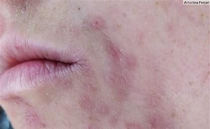 Как выглядит аллергия на лице причины симпомы лечение фото