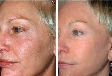 Фракционное лазерное омоложение кожи лица что это такое