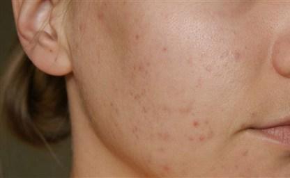 Отбеливающие маски для кожи лица от пигментных пятен