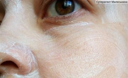 10 рецептов как убрать пигментные пятна на лице