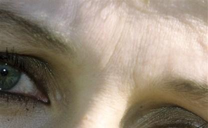 Красные глаза после наращивания ресниц как лечить