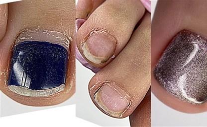 После гель лака болят ногти в чем причина и как избежать этой