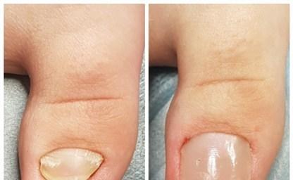 Как лечить воспаленный палец после педикюра