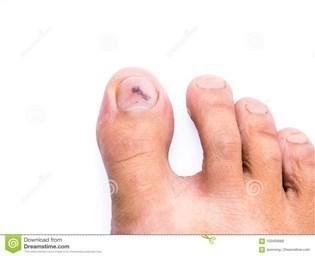 Синяк гематома под ногтем большого пальца ноги или руки