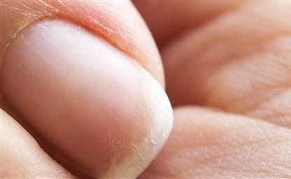 Слоятся и ломаются ногти на руках Что делать Причины