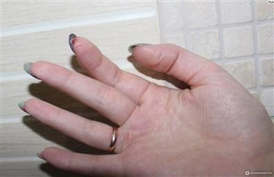 Ожог ногтевой пластины Что делать Преображение ногтей
