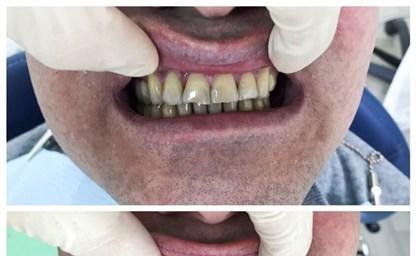 Как происходит изготовление съмных зубных протезов